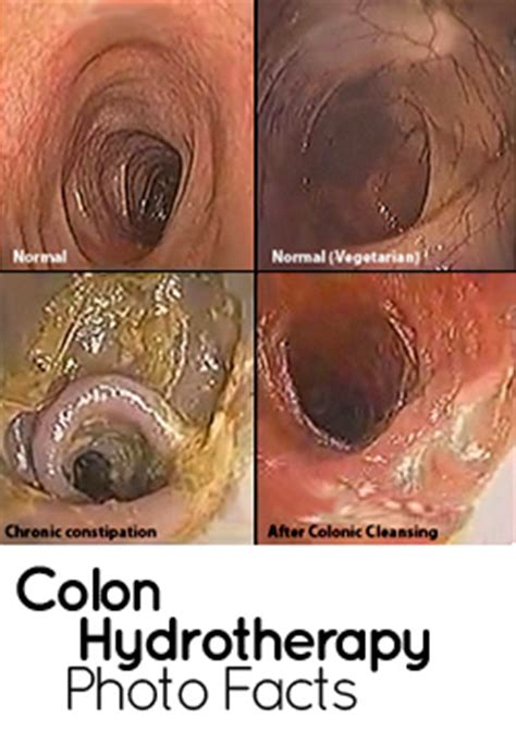 cleaning before sex colon cleansing picture 7