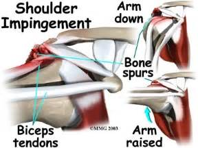 joint impingement syndrome shoulder diagnosis treatment picture 10