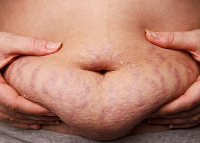 facts about stretch marks picture 14