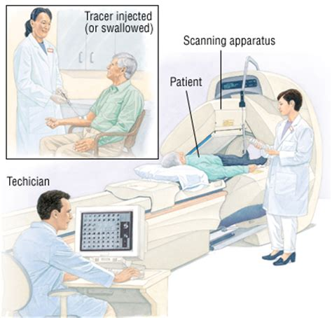 camera procedure for thyroid cancer picture 11
