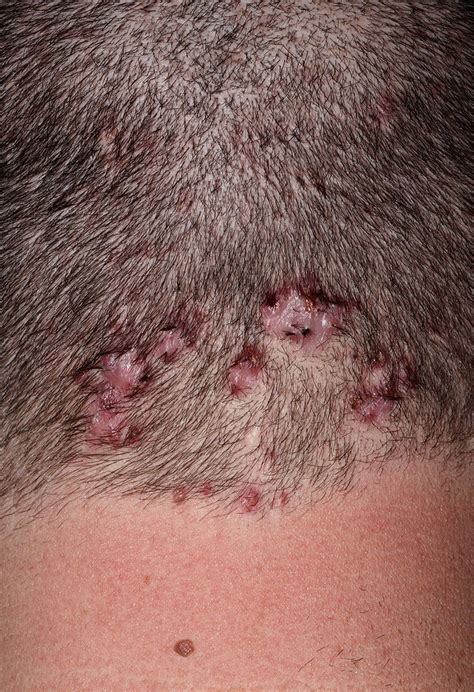 acne on te head picture 6