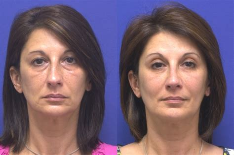 anti aging benefits of premarin cream picture 3