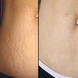 apple cider cure stretch marks picture 5