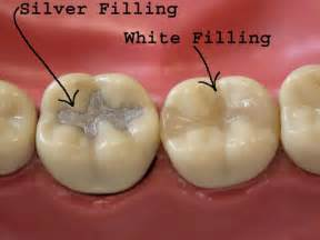 filling cavities in wisdom h picture 10