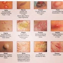 imon imon skin allergy picture 3