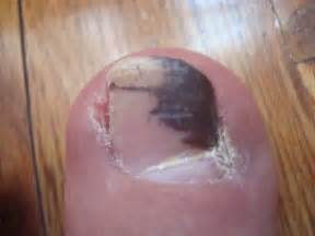 picture of toenail fungus picture 2