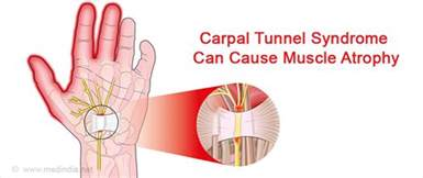 causes and cures of muscle wasting picture 3