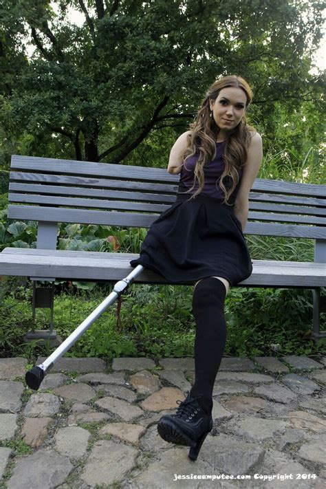 amputee women leg prosthesis picture 2