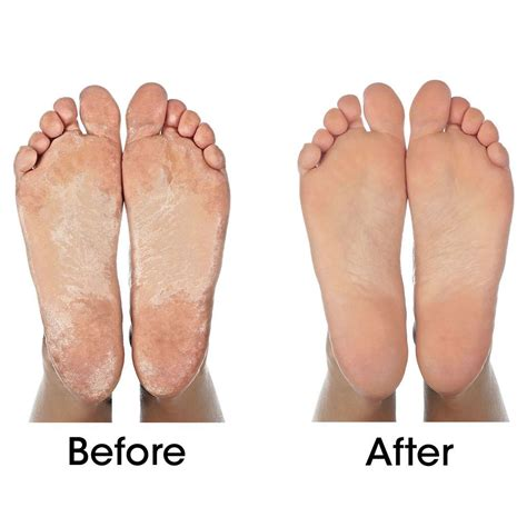 natural removing dead skin from feet picture 3