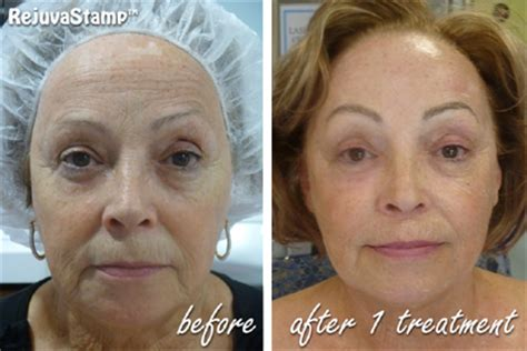 skin needling for plump lips picture 2