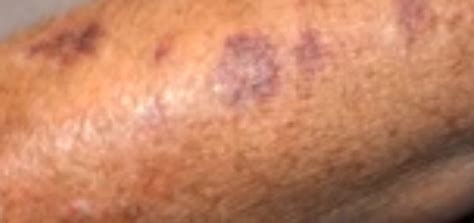 skin reactions purple blotches picture 2