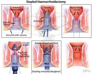 hemorrhoid removal picture 6