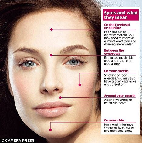 acne high testosterone levels picture 3