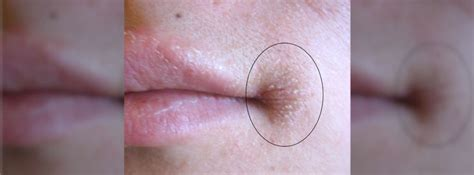 yeast & bacteria infection on corner of lip,should picture 9