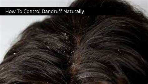 how to control dandruffs picture 1