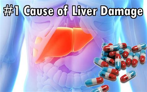 what herb was found to cause liver damage picture 6