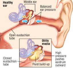 can hypothyroidism cause ear infections in children picture 2
