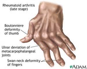 joint pain in hands and feet picture 3