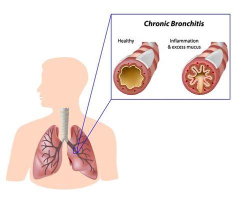 sinus ear infection bronchitis prescription picture 1
