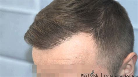 a.r.t. hairloss picture 2