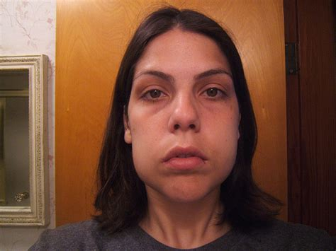 anti-swelling pills for post-wisdom teeth removal picture 12