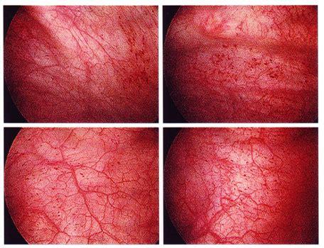 What cures trigonitus picture 18