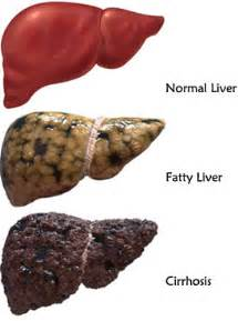 alcoholic liver disease picture 6
