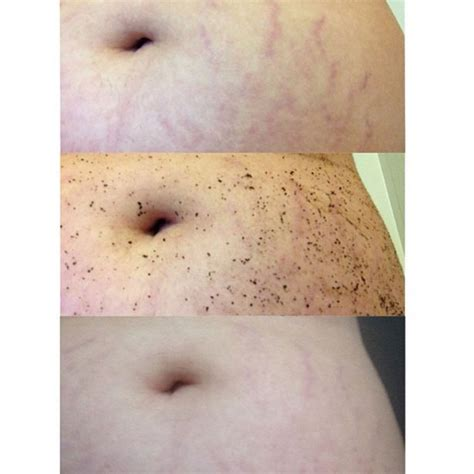frank stretch marks before and after picture 5