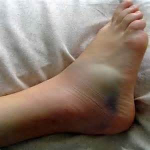 swelling herbal healing picture 3