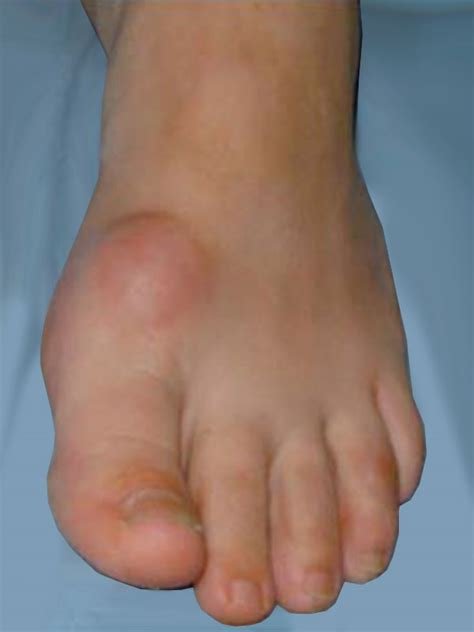big toe joint pain picture 11