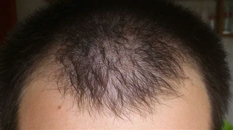 hair loss 2 months picture 6