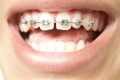 gold and silver teeth picture 5