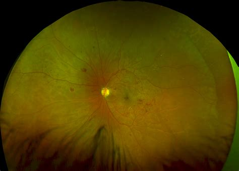 california diabetic retinopathy picture 11