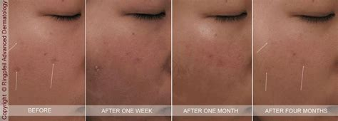 accutane reviews picture 7