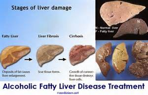fatty liver treatment picture 14