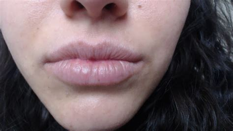 chapped lips my whole life picture 14