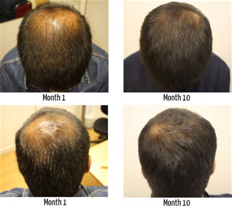 propecia for hair loss picture 1