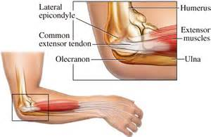 elbow joint pain picture 5