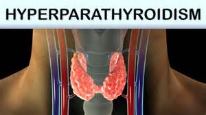 hyperparathyroidism discussion boards forum picture 1