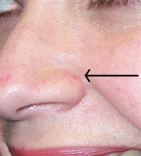 warts in the nose picture 9