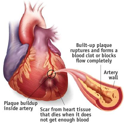 women and heart attacks indigestion picture 7
