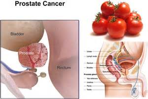 special diet prostate cancer picture 3