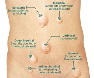 can groin hernia affect your erection picture 7