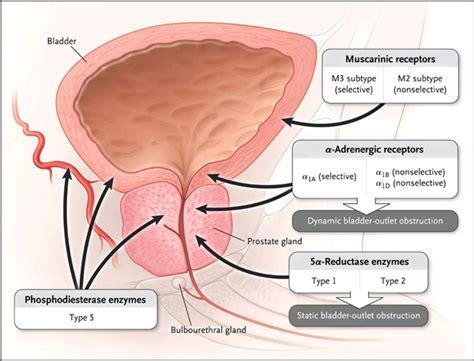 Benign prostate hyperplasia picture 10
