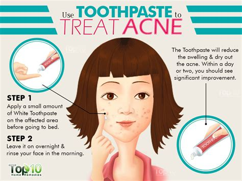acne remedies picture 14