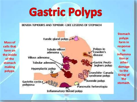 diseases of gastrointestinal tract picture 7