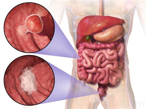 colon polyps naturopathic medicine picture 15