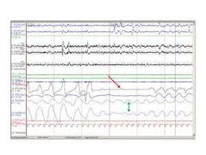 protocol for scoring hypopneas in polysomnography sleep study picture 5