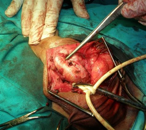 alternative cure for urethral stricture picture 10