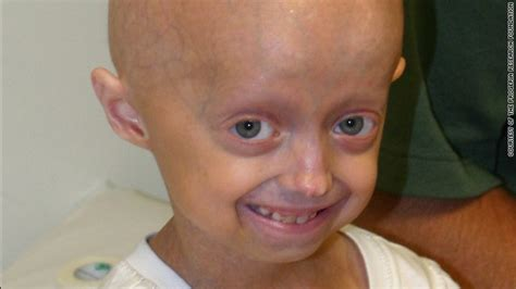 accelerated aging progeria syndrome picture 2